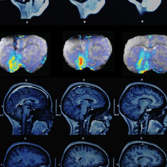 A series of three MRI images shows how dopamine concentrations change over time in the brain.