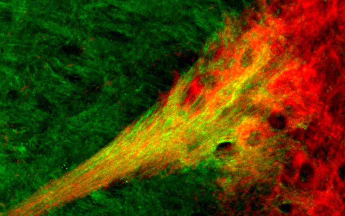Substantia nigra - striatal circuit