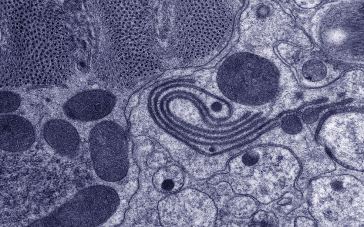 C. elegans electron micrograph