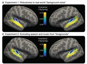 brain regions responding to sound