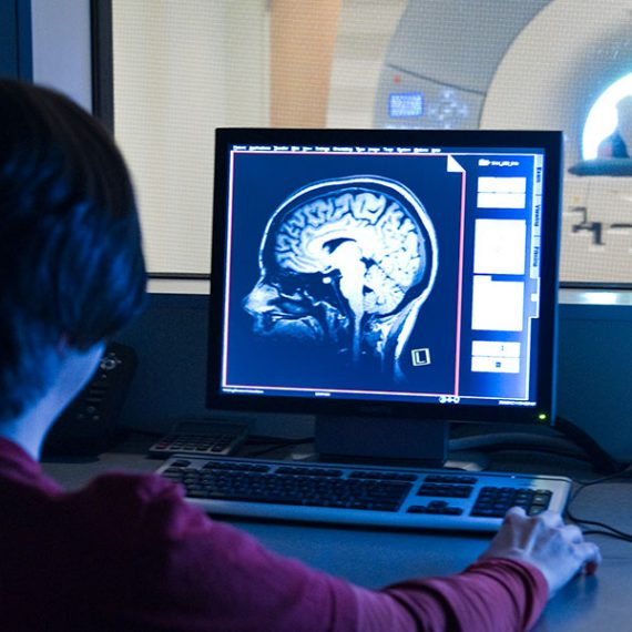 woman looks at brain scan
